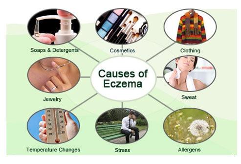 causas de eczema dermatite atopica