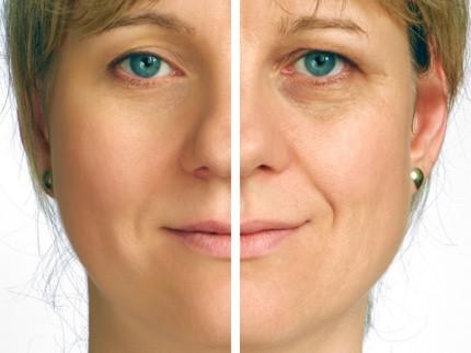 laser envelhecimento pele