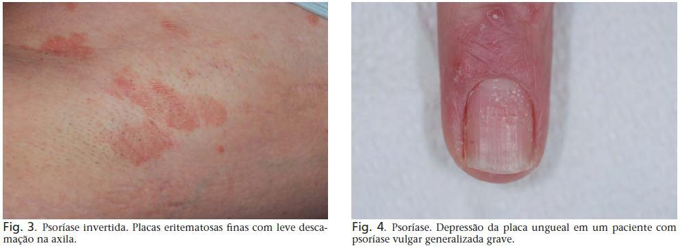 psoriase dermatite