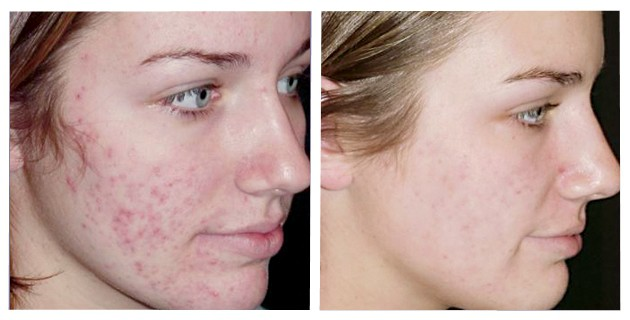 tipos de acne