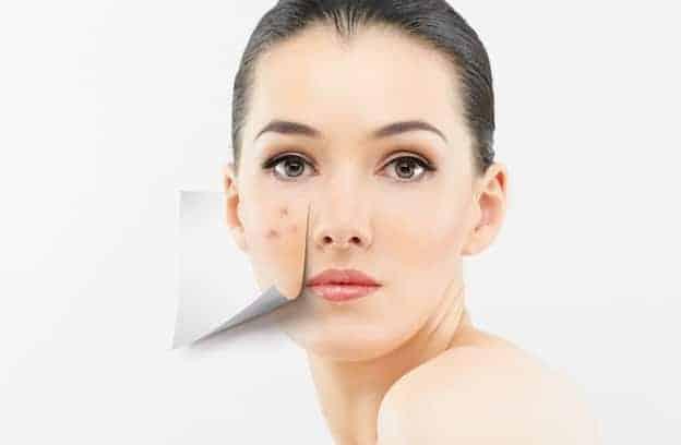 tratamento de acne dermatologia sao paulo