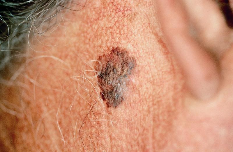 cancer de pele melanoma