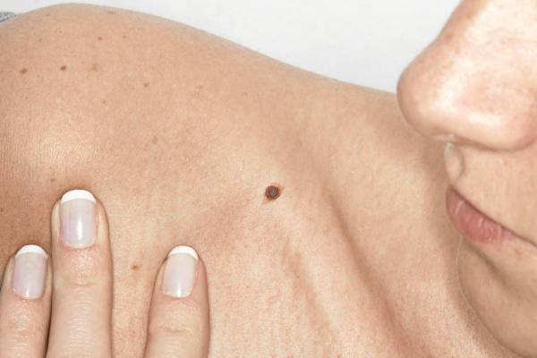 atencao ao melanoma