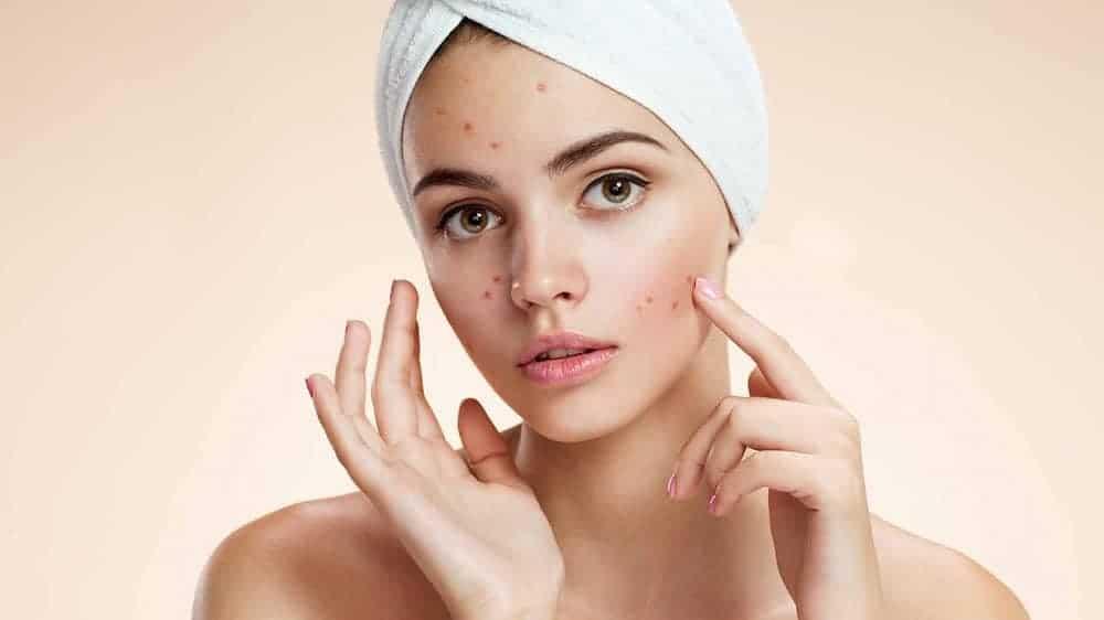 cuidar da acne no frio dicas