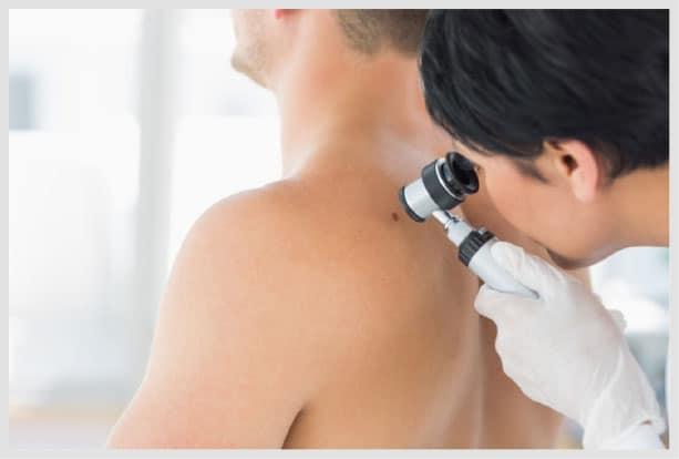 faca uma verificacao regular da pele