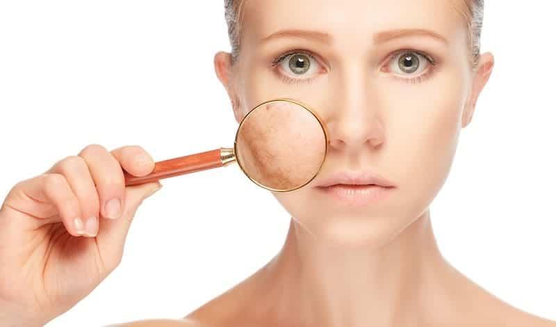 dermatologia neutrogena estudo cancer de pele