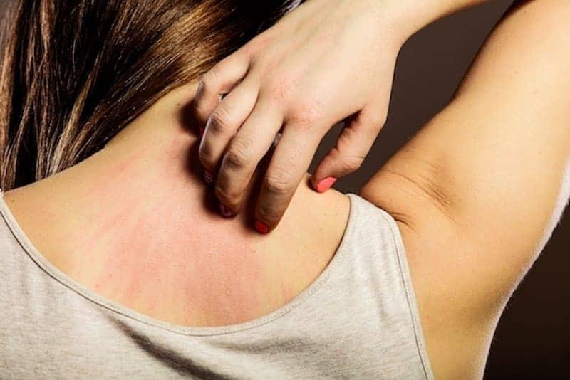 alergia na pele por bijuterias