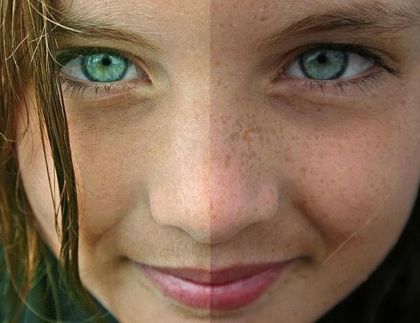 clareamento de pele