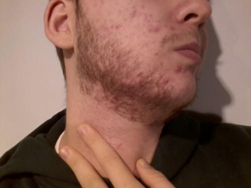 espinhas barba homem