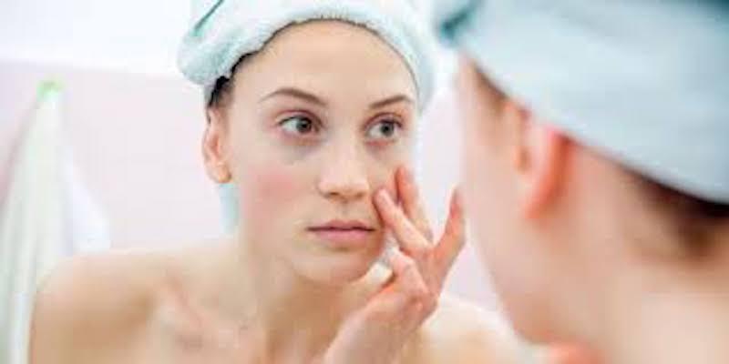conselhos acne