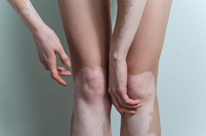tratamento-de-vitiligo
