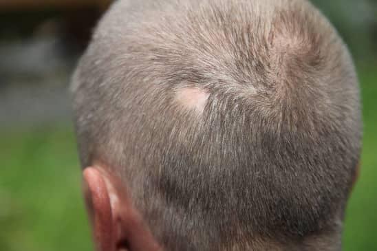 alopecia-areata-e-seu-cabelo