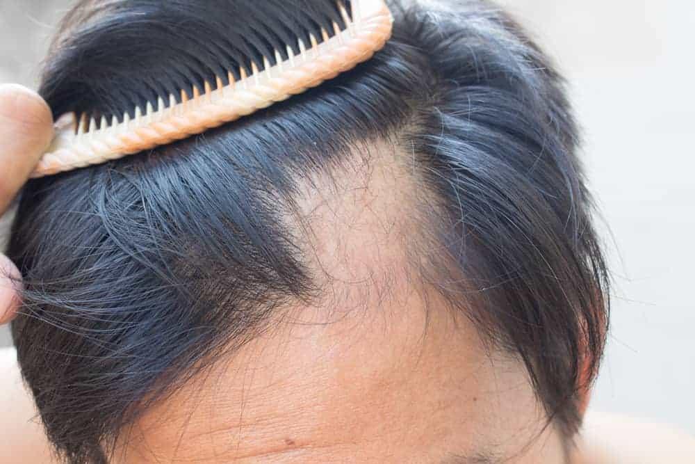 queda-de-cabelo-alopecia-areata