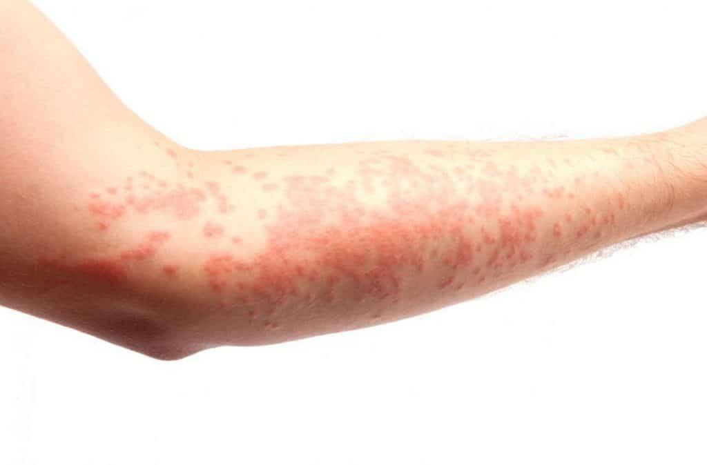 urticaria dermatologia