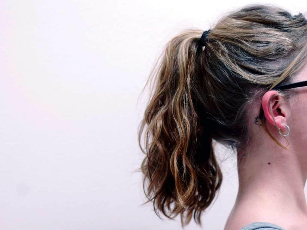 o que é alopecia por tracao