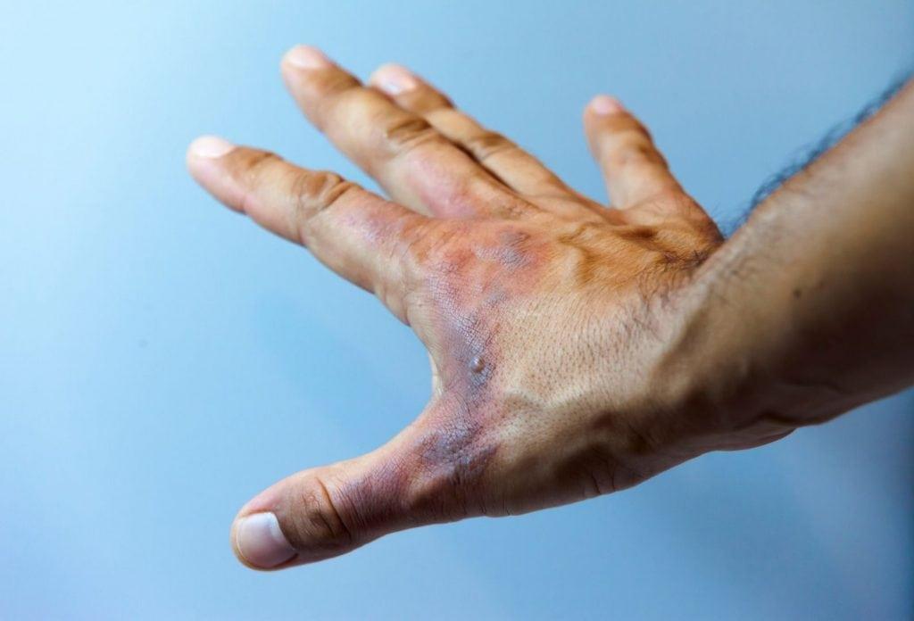 Como tratar queimaduras