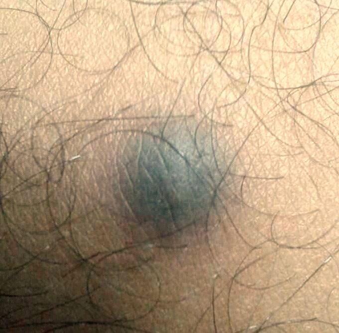 dermatofitose