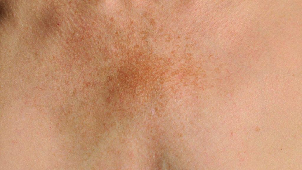 melasma no pescoço